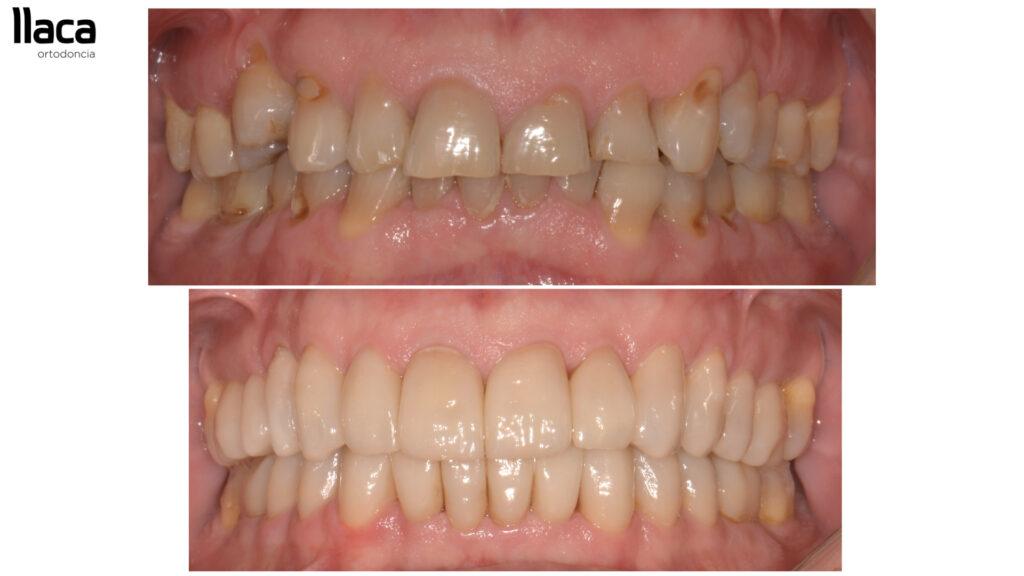 Antes y Después Ortodoncia Adultos